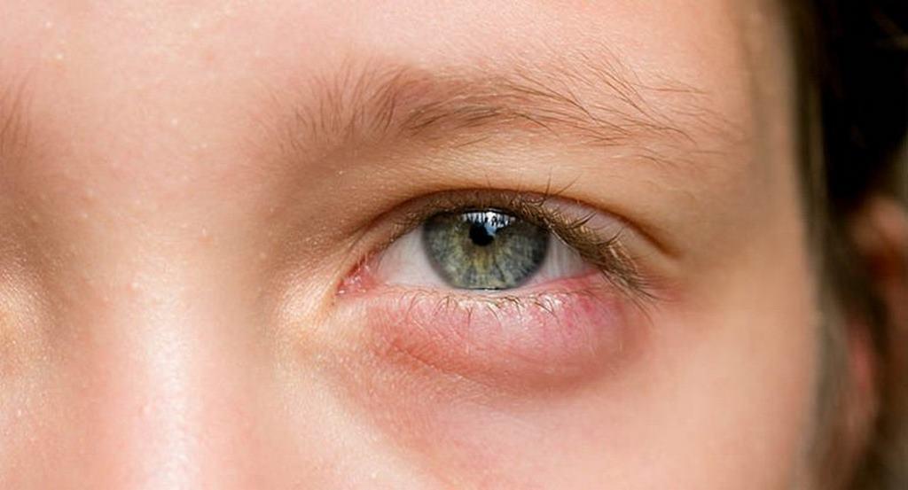 cách loại bỏ bọng mắt