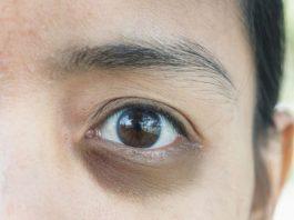 bọng mắt