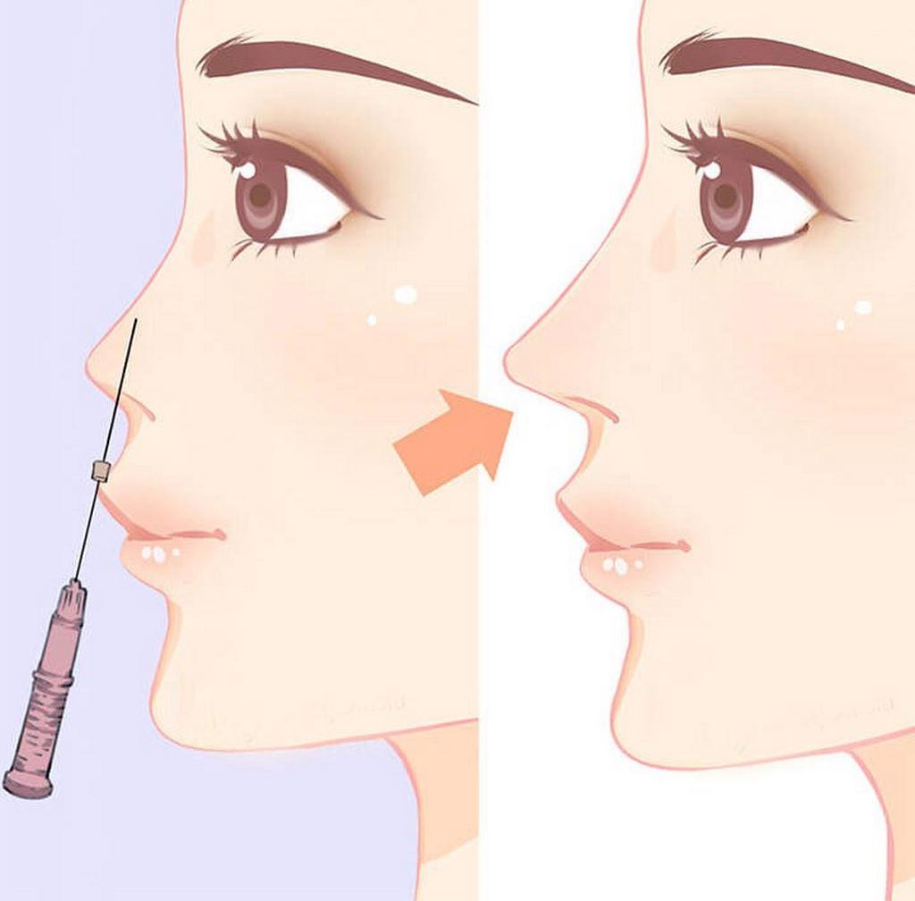 Nâng mũi