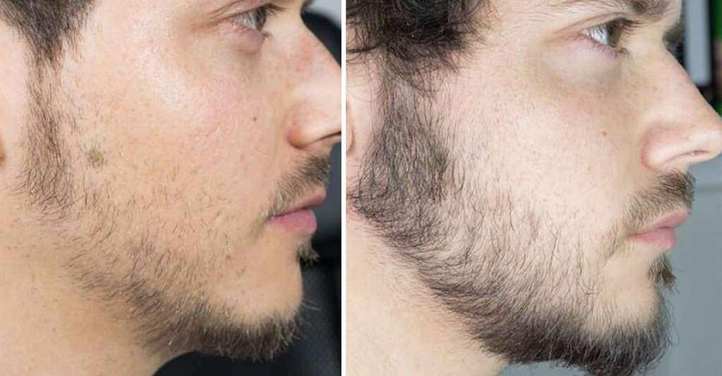 Thuốc mọc râu